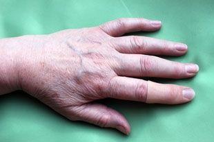Fingerprothese