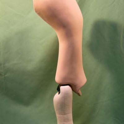 Orthoprothesen