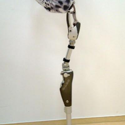 Hüftexprothese
